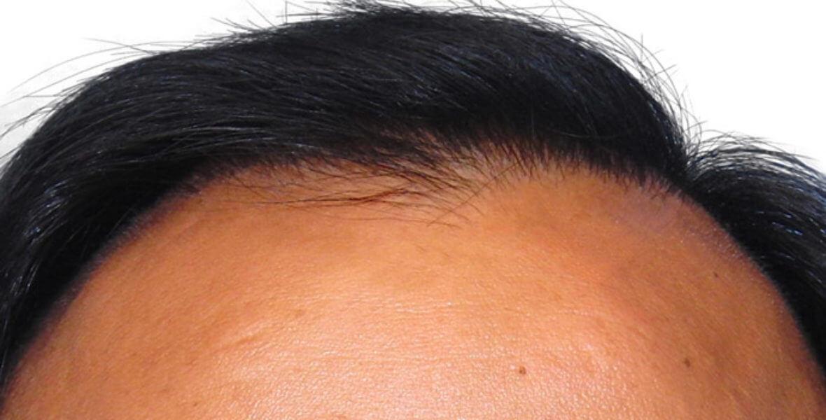 przeszczep włosów Artas po