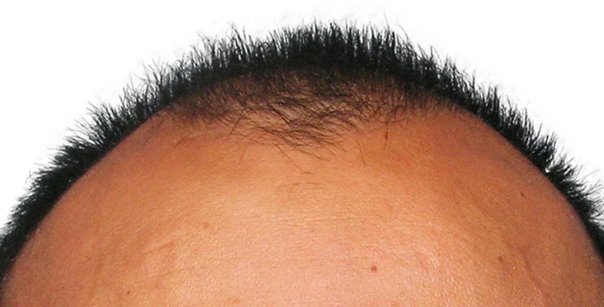 przeszczep włosów Artas przed