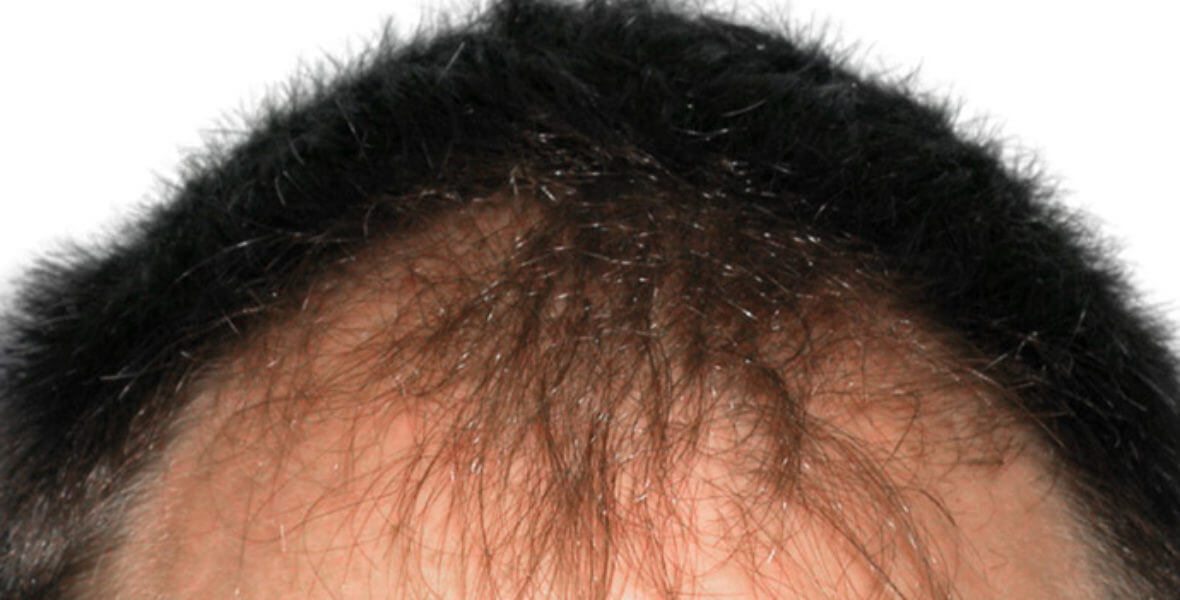 przeszczep włosów przed i po