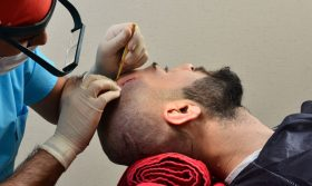 transplantacja włosów etap