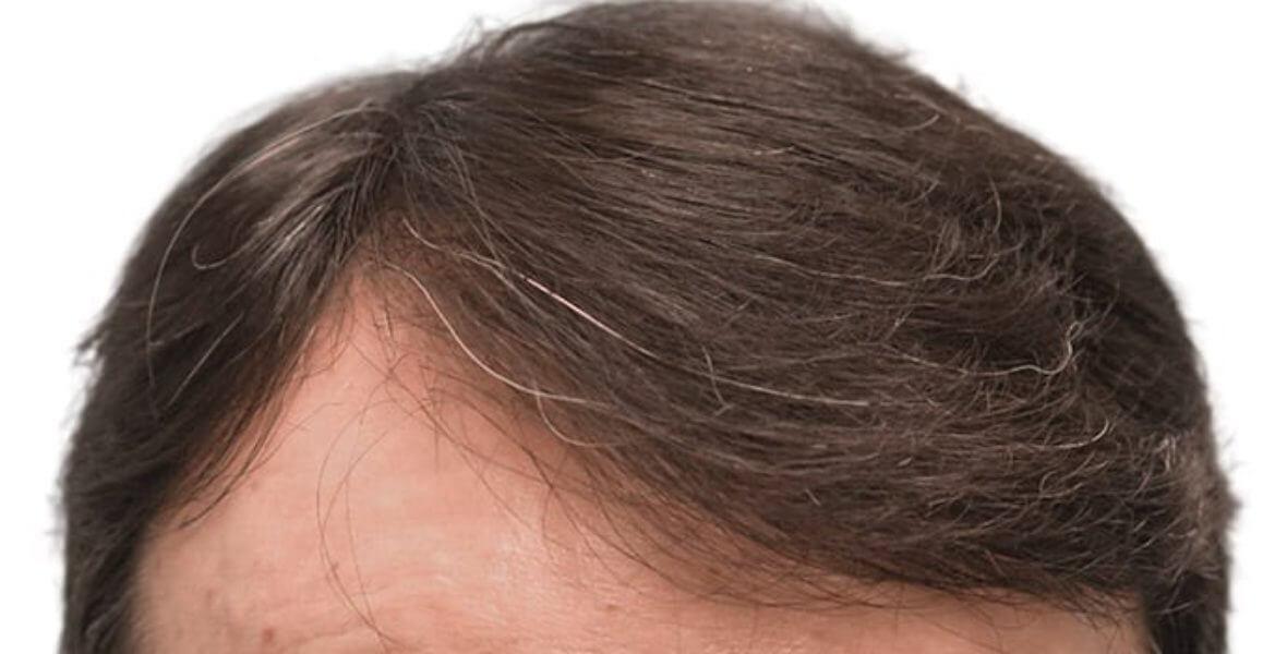 efekty przeszczepu włosów po