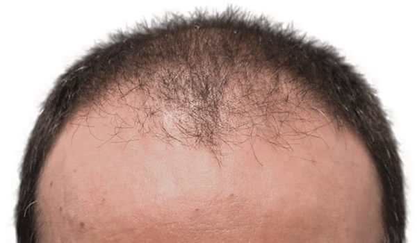 efekty przeszczepu włosów przed