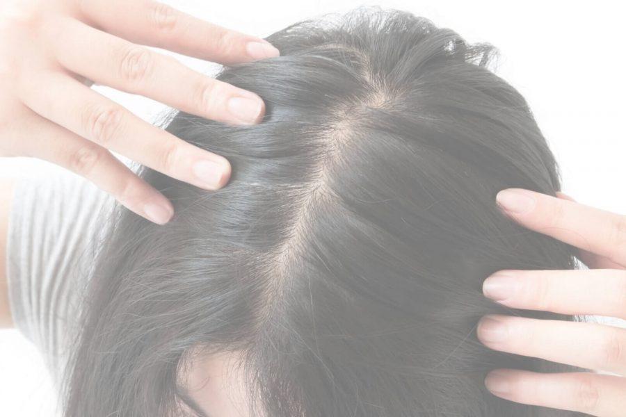 Jakie są rodzaje łysienia? Typy łysienia umężczyzn ikobiet
