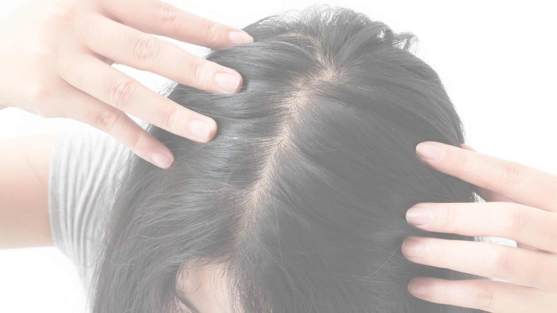 rodzaje łysienia ukobiet iumężczyzn