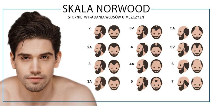 leczenie łysienia androgenowego Warszawa
