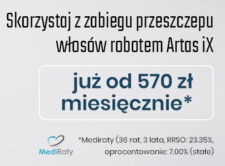 przeszczep włosów cena Warszawa